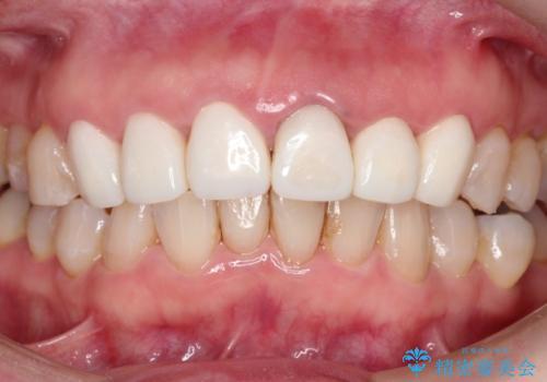 被せ物に合わせて歯を白くしたいの症例 治療前