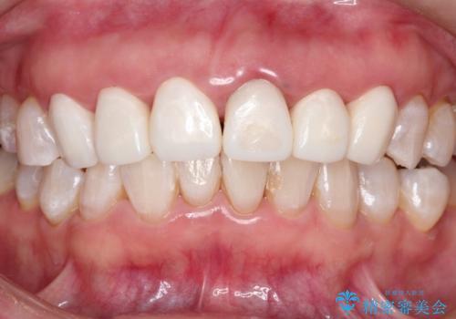 被せ物に合わせて歯を白くしたいの症例 治療後