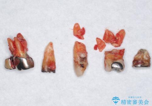 交通事故で前歯が折れた マグネットデンチャー 50代男性の治療中