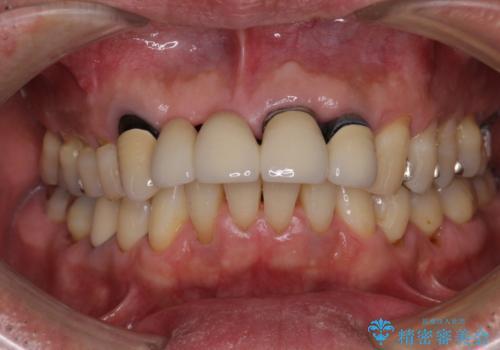 話しにくく見栄えの悪い前歯 オールセラミックブリッジの治療前