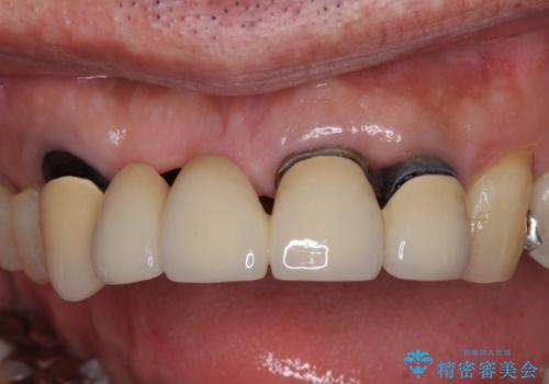 話しにくく見栄えの悪い前歯 オールセラミックブリッジの症例 治療前