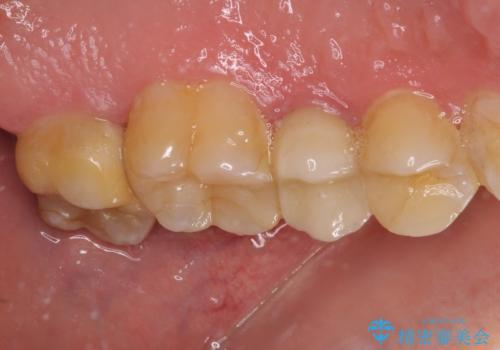 冷たいものがしみる 神経組織の一部を除去した虫歯治療の治療前