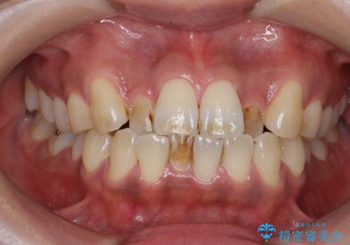 PMTCで歯の表面の着色をきれいに除去。の治療前