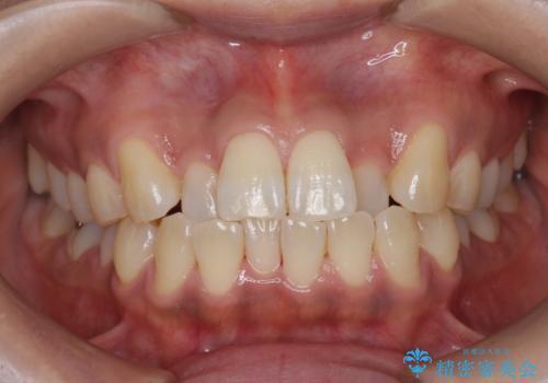PMTCで歯の表面の着色をきれいに除去。の治療後