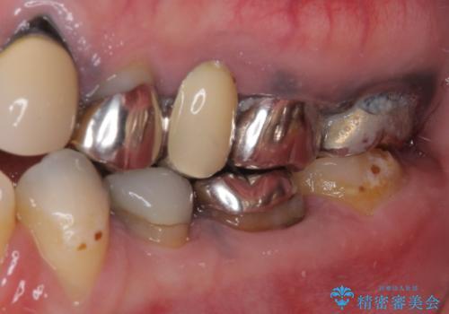 目立つ銀色の奥歯をセラミックに セラミックブリッジの治療前