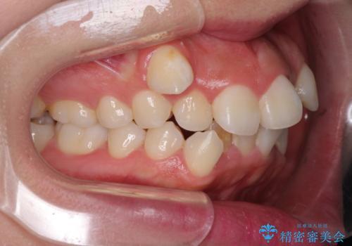 著しい叢生と顎骨のズレ ワイヤー装置による抜歯矯正の治療前