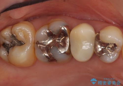 歯が欠けた セラミッククラウンで綺麗に 40代女性の治療前