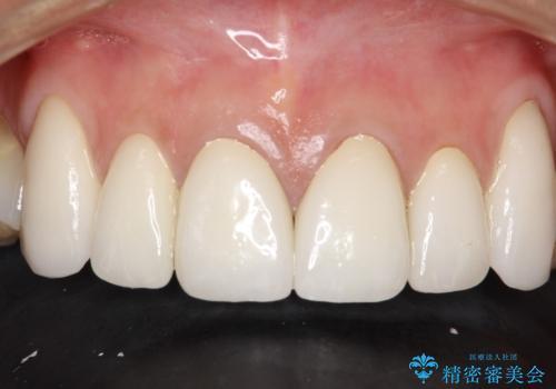 前歯のかぶせ物をオールセラミックへ 形を含めて理想の前歯への治療後