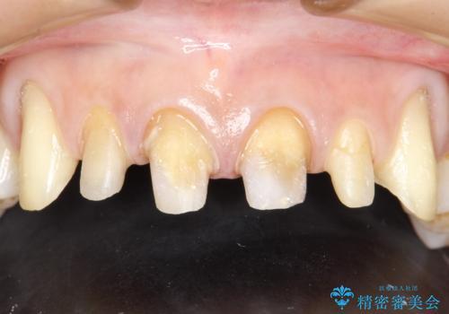 前歯のかぶせ物をオールセラミックへ 形を含めて理想の前歯への治療中