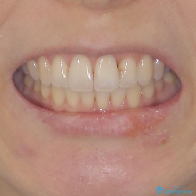 短期間で仕上げたい ワイヤーでの非抜歯矯正の治療後(顔貌)
