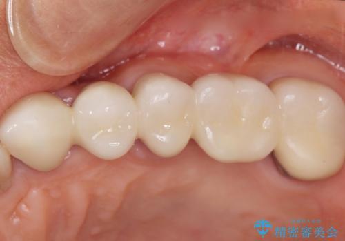 歯ぐきが腫れている 残せない歯を抜歯してブリッジへ 60代男性の治療後