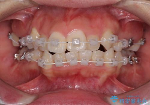 著しい叢生と顎骨のズレ ワイヤー装置による抜歯矯正の治療中