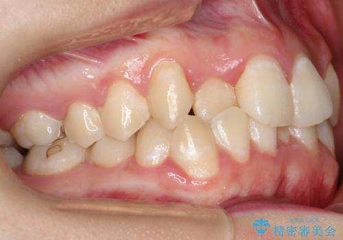 前歯が前後反対にかんでいる インビザラインによる矯正の治療前
