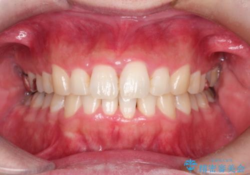 全体のガタガタをインビザラインできれいな歯並びへの症例 治療後