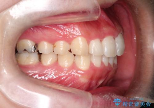 全体のガタガタをインビザラインできれいな歯並びへの治療後