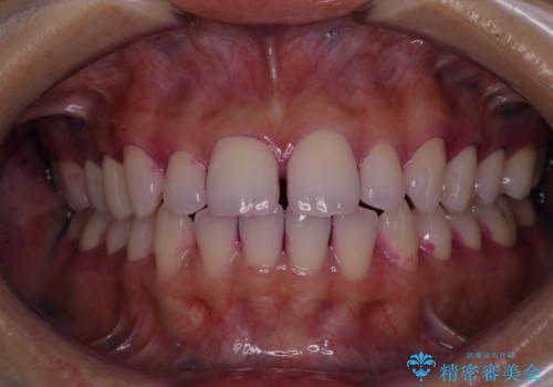 歯科矯正前にPMTCで清潔な口腔内にの治療前