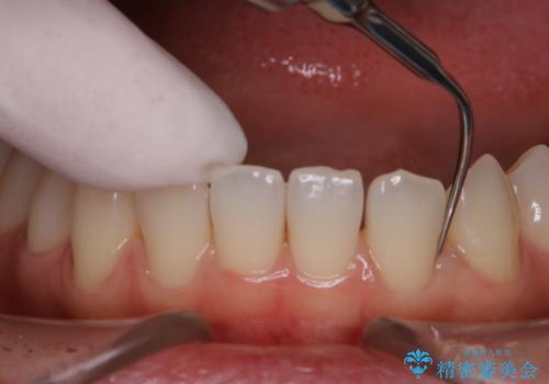 歯科矯正前にPMTCで清潔な口腔内にの治療中