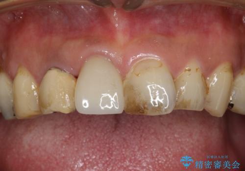 ステインにより見つかりにくい虫歯の治療前