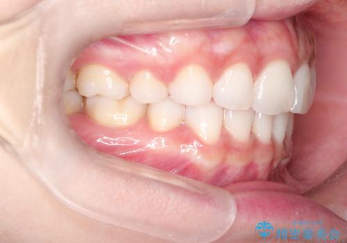 口が閉じにくい 口ゴボの抜歯矯正による改善の症例 治療後