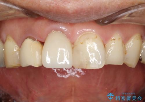 ステインにより見つかりにくい虫歯の治療後