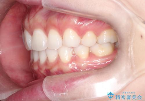 口が閉じにくい 口ゴボの抜歯矯正による改善の治療後