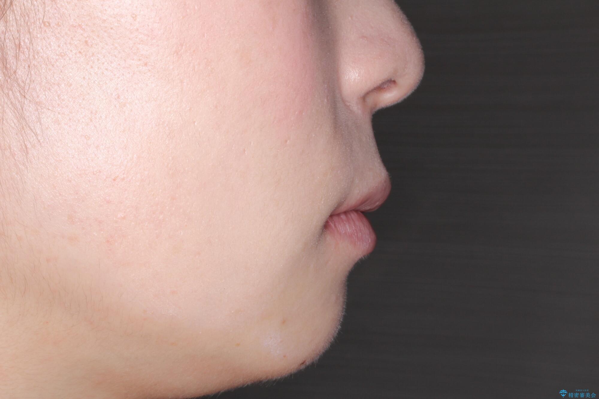 口が閉じにくい 口ゴボの抜歯矯正による改善の治療後(顔貌)
