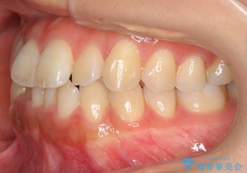 前歯のがたつき インビザラインで 下の奥歯を後ろに下げるの治療前