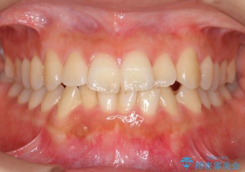 前歯のがたつき インビザラインで 下の奥歯を後ろに下げるの症例 治療前