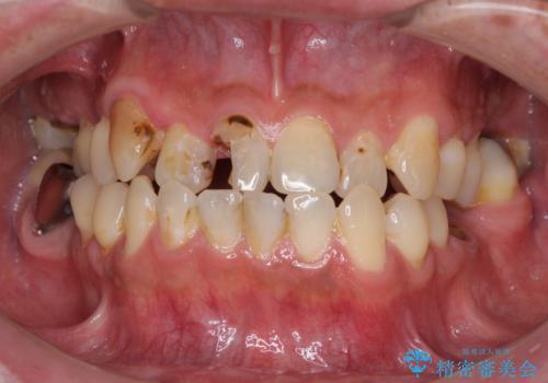 とにかく作り物のような真っ白な歯にしたい フルジルコニアクラウンによる補綴治療の症例 治療前