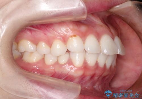 口が閉じにくい 口ゴボの抜歯矯正による改善の症例 治療前