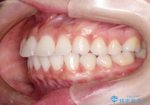 口が閉じにくい 口ゴボの抜歯矯正による改善の治療前