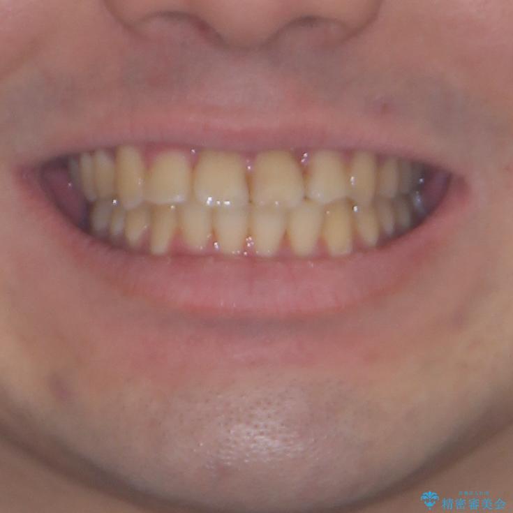 歯列全体のクロスバイトを治したい ワイヤー装置による矯正治療の治療後(顔貌)