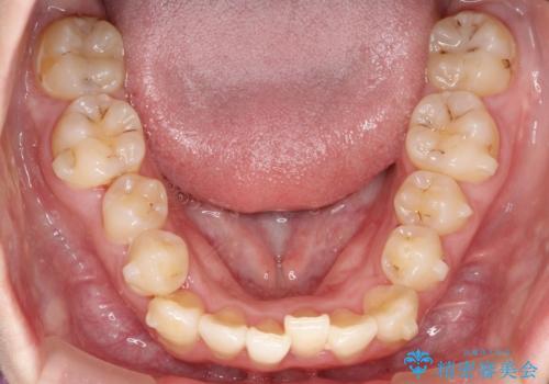 前歯が前後反対にかんでいる インビザラインによる矯正の治療中