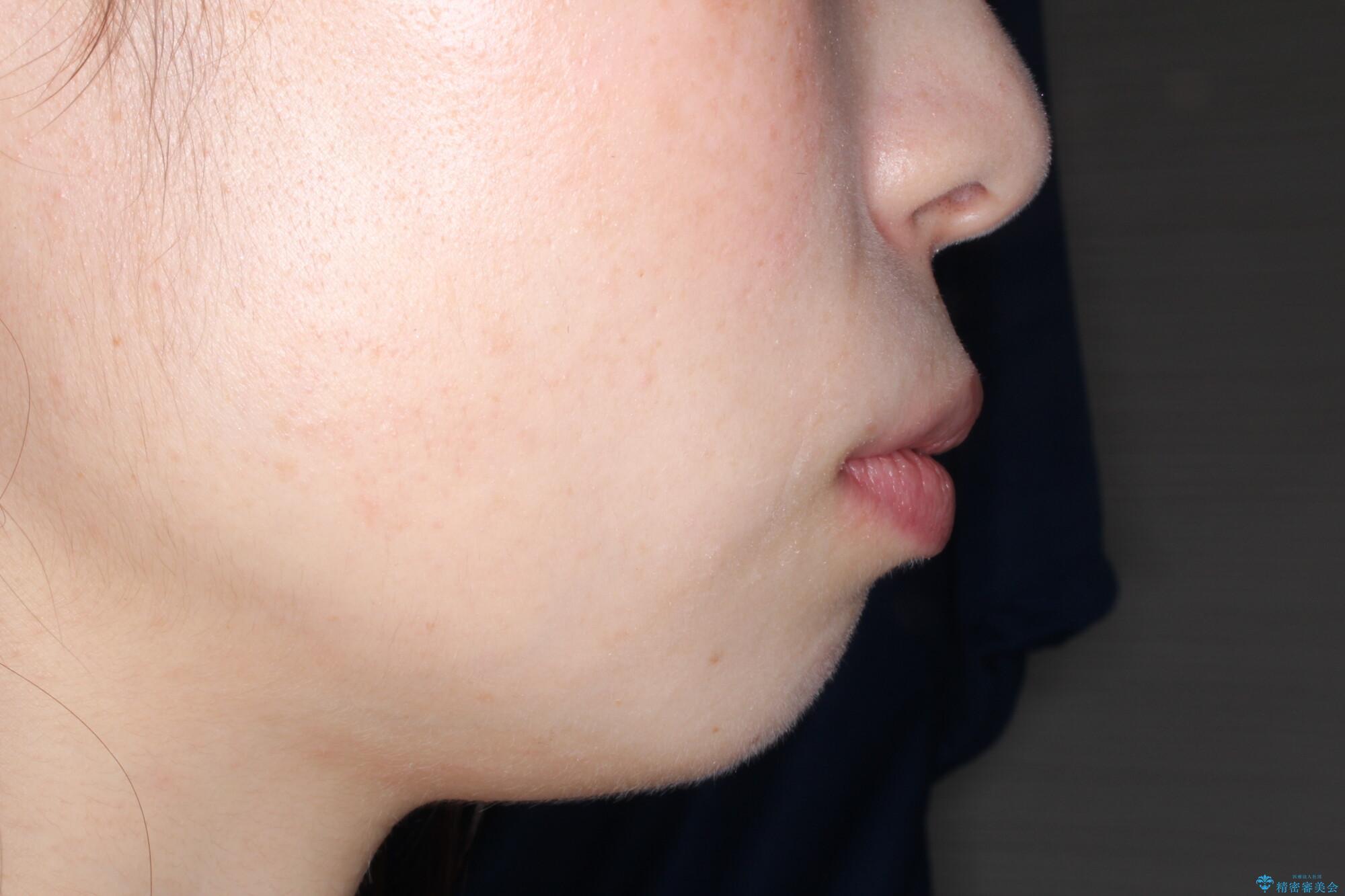 口が閉じにくい 口ゴボの抜歯矯正による改善の治療前(顔貌)