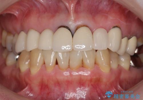 前歯のブリッジの下が虫歯 ブリッジのやりかえの治療前