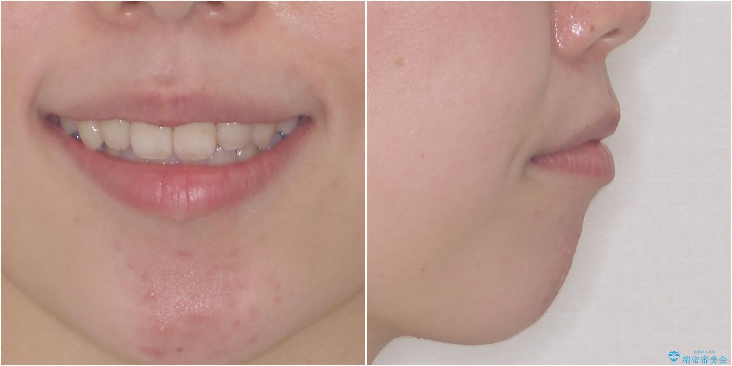 ダンサーとしての仕事を続けながら インビザラインによる抜歯矯正の治療後(顔貌)