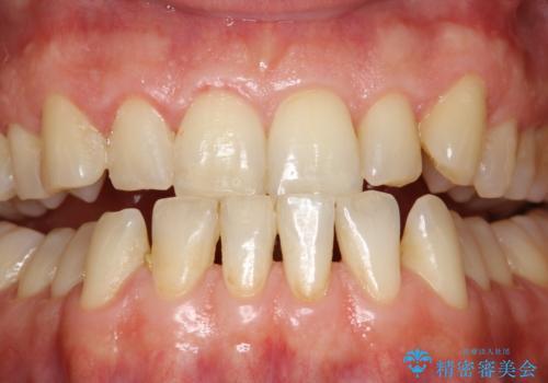 歯磨き中に血が出る PMTCで歯石除去の治療前