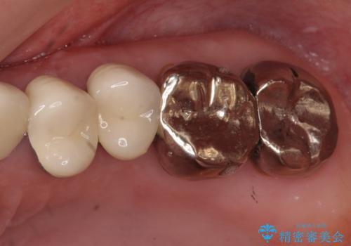 奥歯の被せ物のやり直し 精密根管治療の症例 治療前