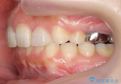 出っ歯を治したい 過蓋咬合の治療後