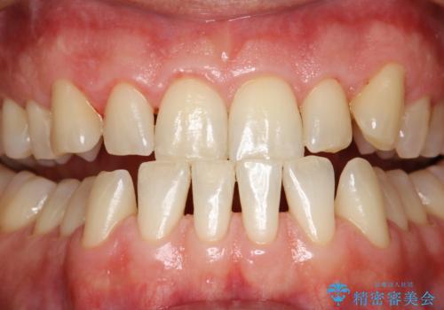 歯磨き中に血が出る PMTCで歯石除去の治療後