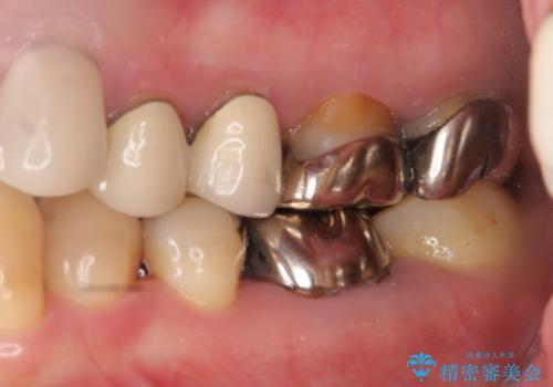 奥歯の被せ物のやり直し 精密根管治療の治療前