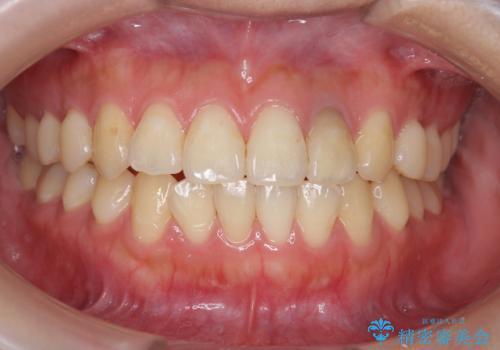 オフィスホワイトニングで歯を白く!の治療前