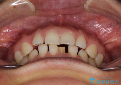 【空隙歯列】ワイヤー矯正で短期間に治療を終えたいの治療前