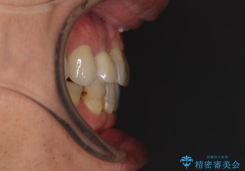 歯列不正と歯周病 総合歯科治療による全顎治療の治療後