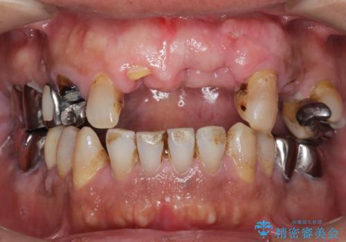 交通事故で前歯が折れた マグネットデンチャー 50代男性の治療前