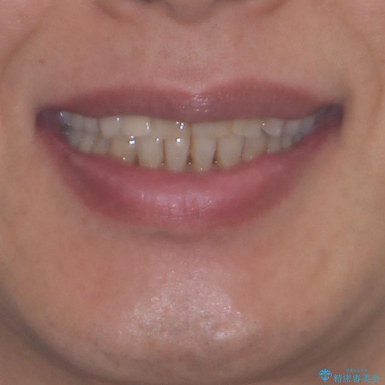 歯列不正と歯周病 総合歯科治療による全顎治療の治療後(顔貌)