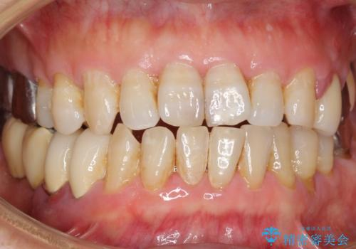 歯ぐきが腫れている 残せない歯を抜歯してブリッジへ 60代男性の治療前