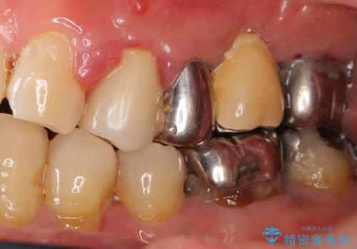 歯ぐきが腫れている 残せない歯を抜歯してブリッジへ 60代男性の症例 治療前