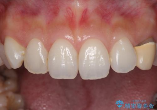 保険診療の変色したクラウン 前歯の審美歯科治療の治療前