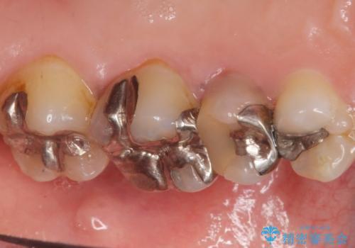 歯ぐきを押すと痛い 神経が死んでいる歯の治療 40代女性の治療前